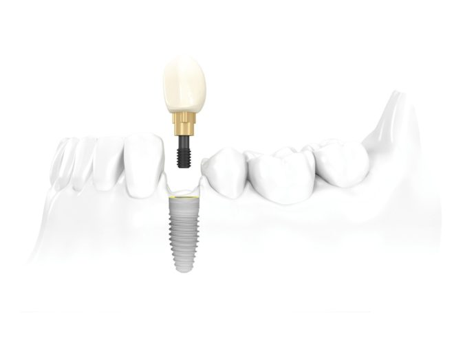 dental implants san antonio
