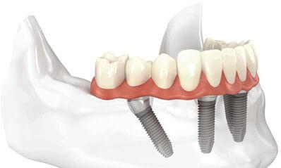 all-on-four dental implants San Antonio