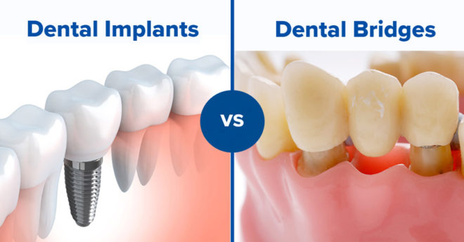 dental bridge vs. dental implant