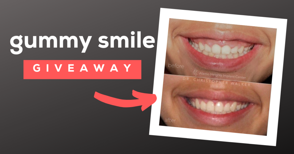 gummy smile - aesthetic crown lengthening
