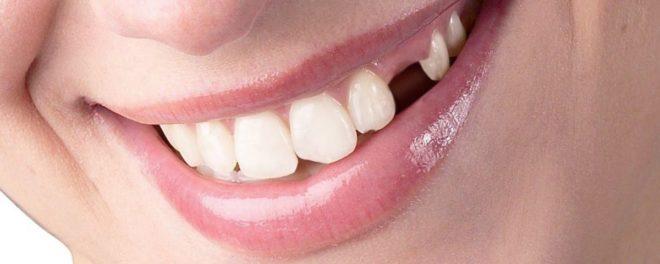 Missing Tooth San Antonio Tx