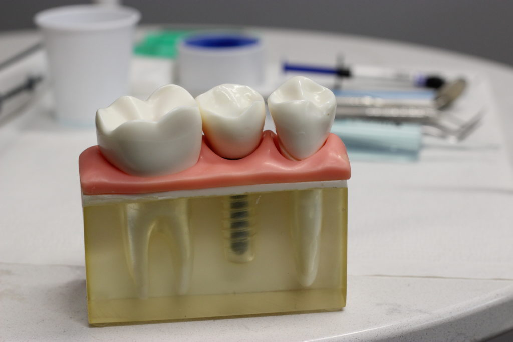 Dental implant model at Alamo Heights Implant Center, San Antonio, TX - Dr. Christopher Walker