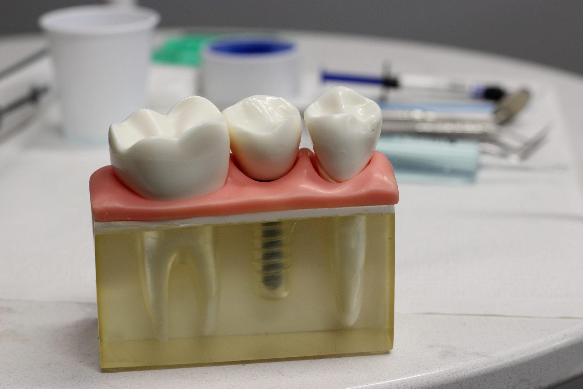 dental implants san antonio