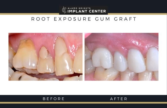 Before and after gum grafting for exposed tooth roots