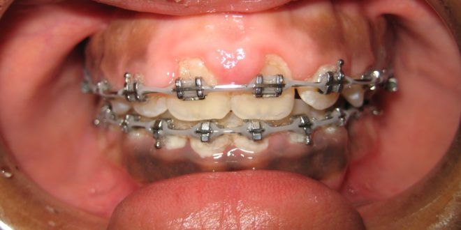 Swollen Gums with Braces